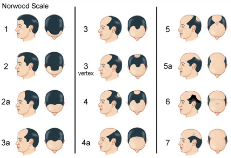 Norwood Scale for Pattern Male Hair Loss
