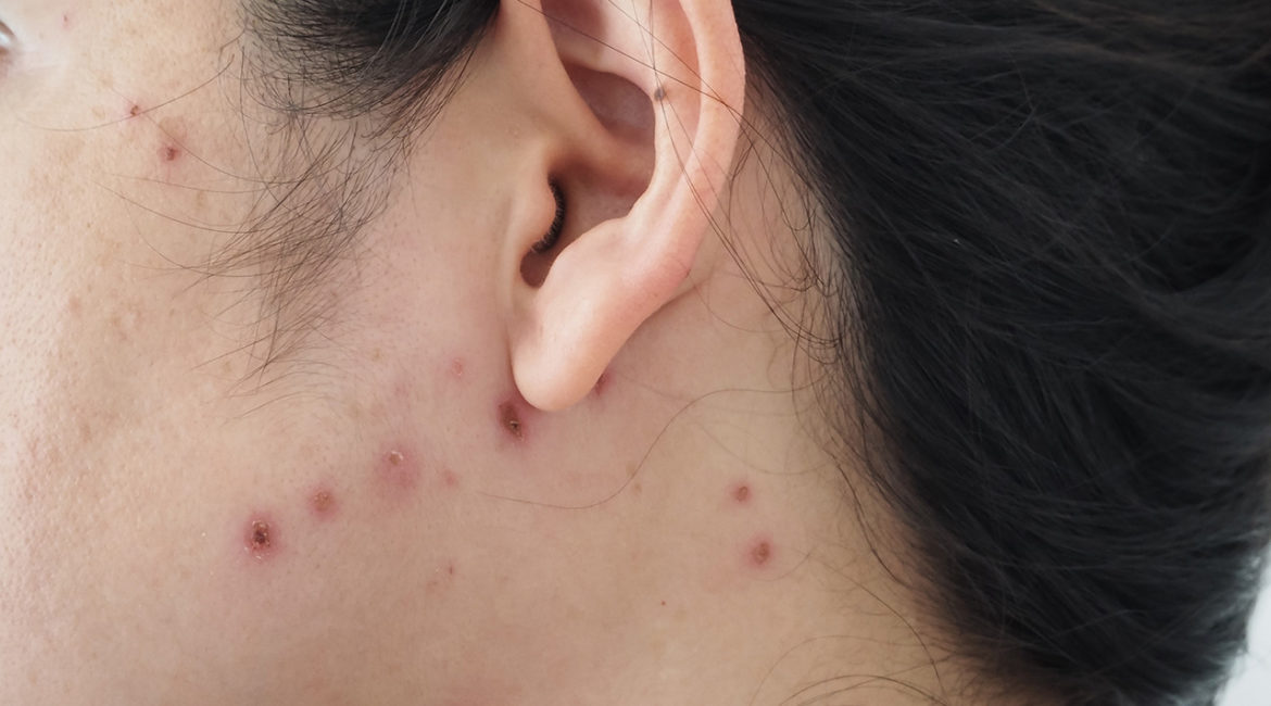 Chicken pox scars on a woman's face and neck.